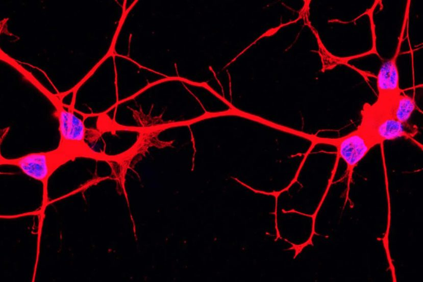 als motor neurons