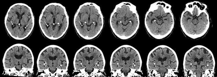 brain scans of a man with severe brain calcifications