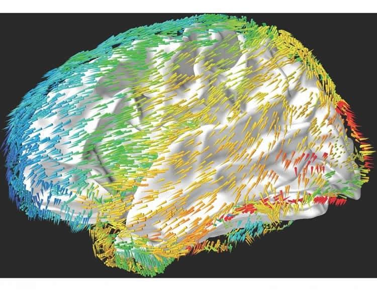 a brain is shown