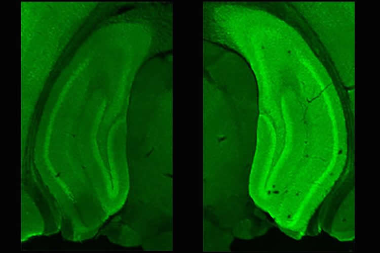 a stained hippocampus