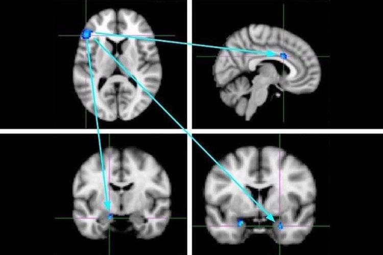 fmri brain scans
