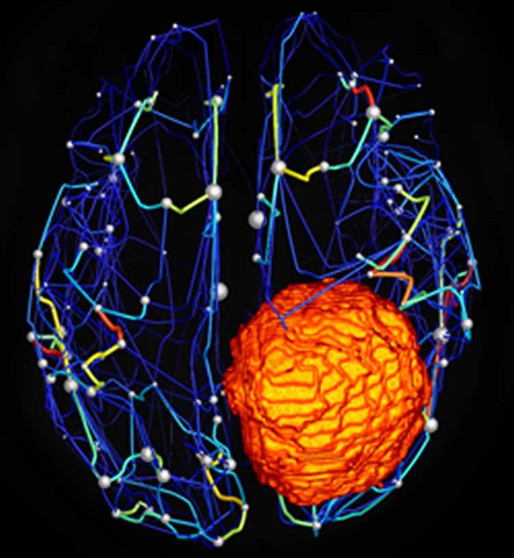 the brain tumor in the virtual brain simulation