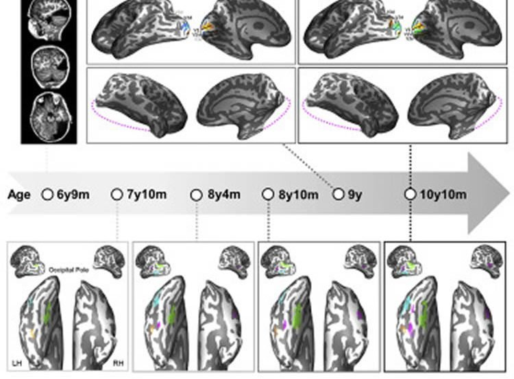 fMRI brain scans of the lobectomy patient