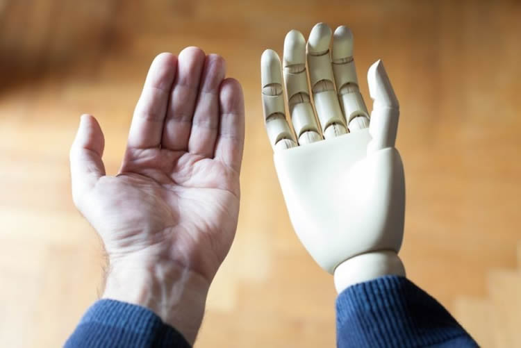 a prosthetic hand