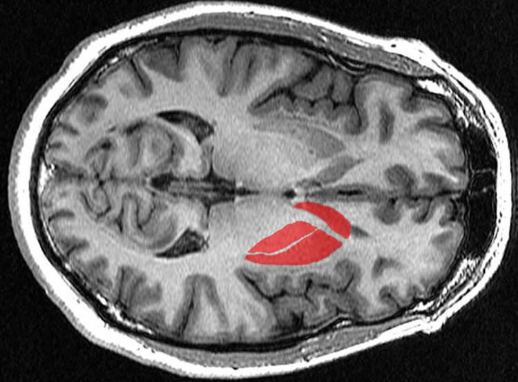 the striatum in the brain