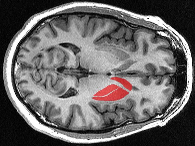 the striatum in the brain