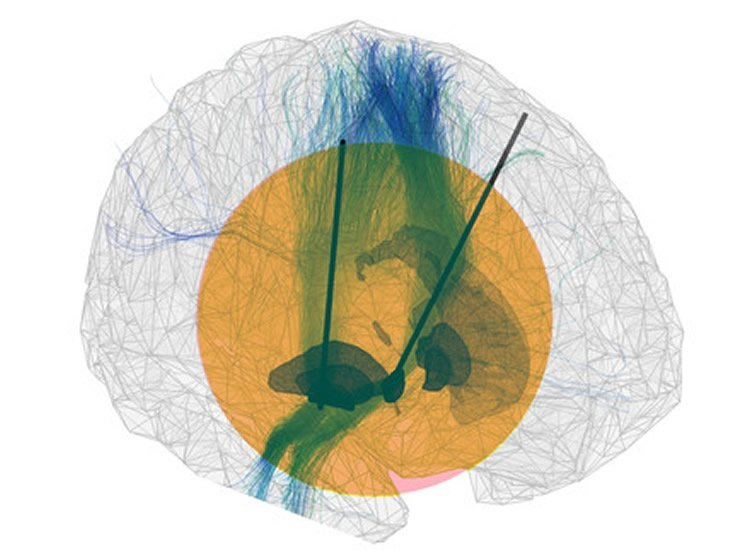 brain implant simulation