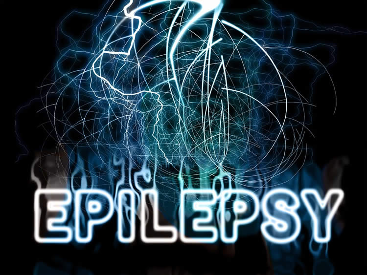 the word epilepsy is shown
