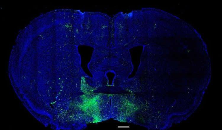 a rodent brain slice