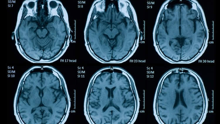 Huntington S Disease Starts In Childhood Neuroscience News