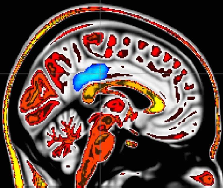 the PCC in a brain scan