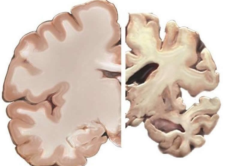 an alzheimer's brain slice