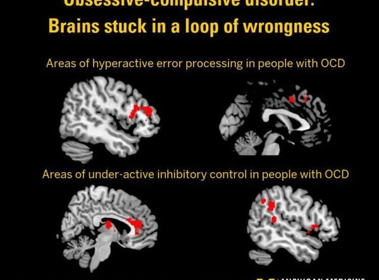 brain scans of ocd patients