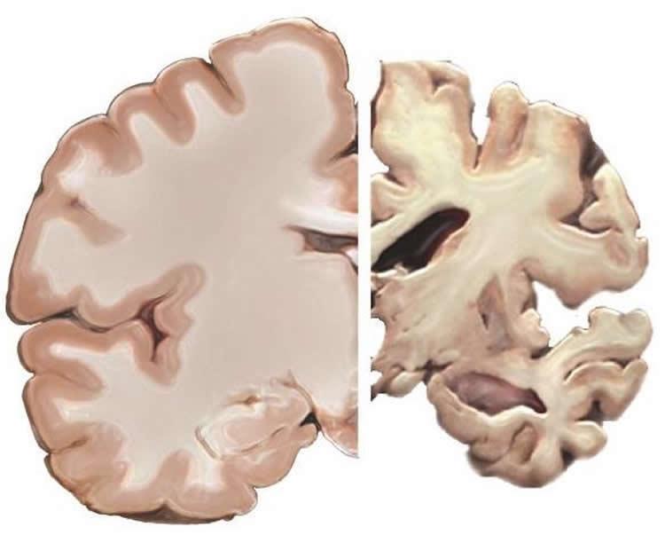 alzheimer's brain slice