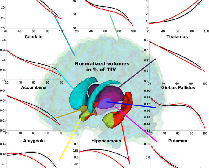An image of a brain is superimposed over the data presented in the caption.
