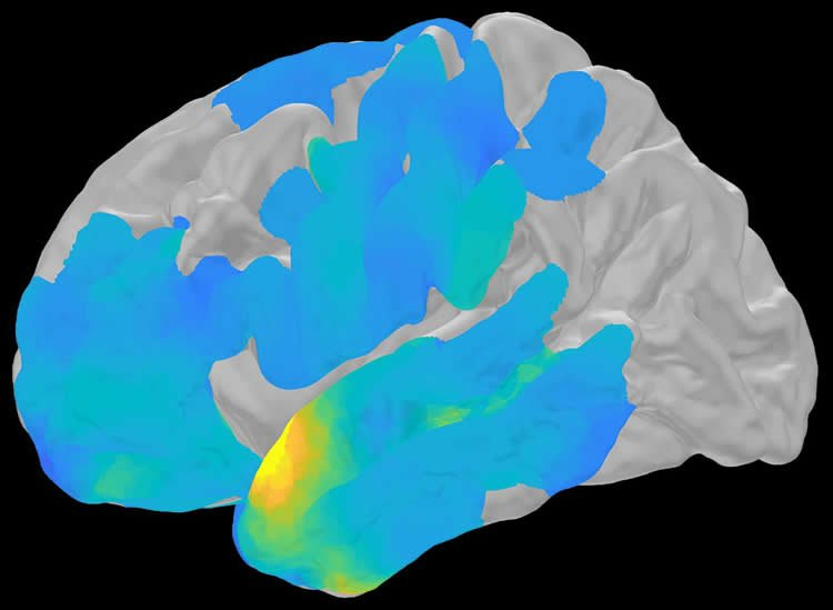 this is a brain scan with the MTL and TL highlighted