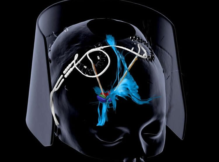 image is a diagram of the dbs implants in the brain