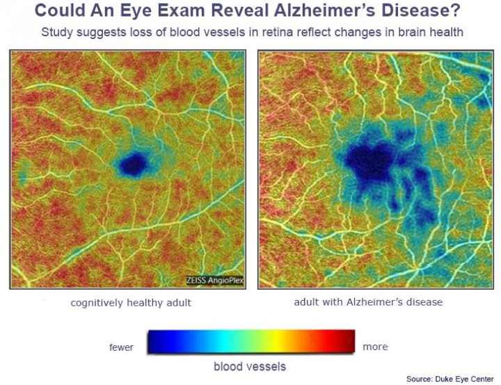 A side by side comparison of areas of eye blood vessels is shown. The eye from the Alzheimer's patient shows a large area with fewer blood vessels.