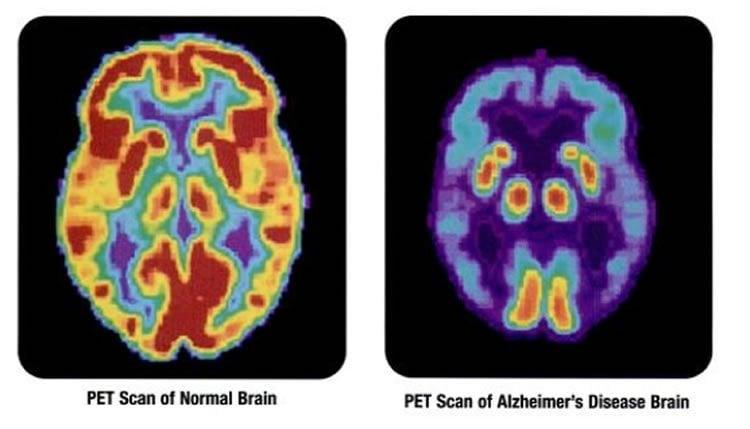 PET brain scan of an alzheimer's patient