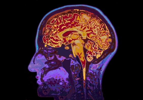 A brainscan is shown.