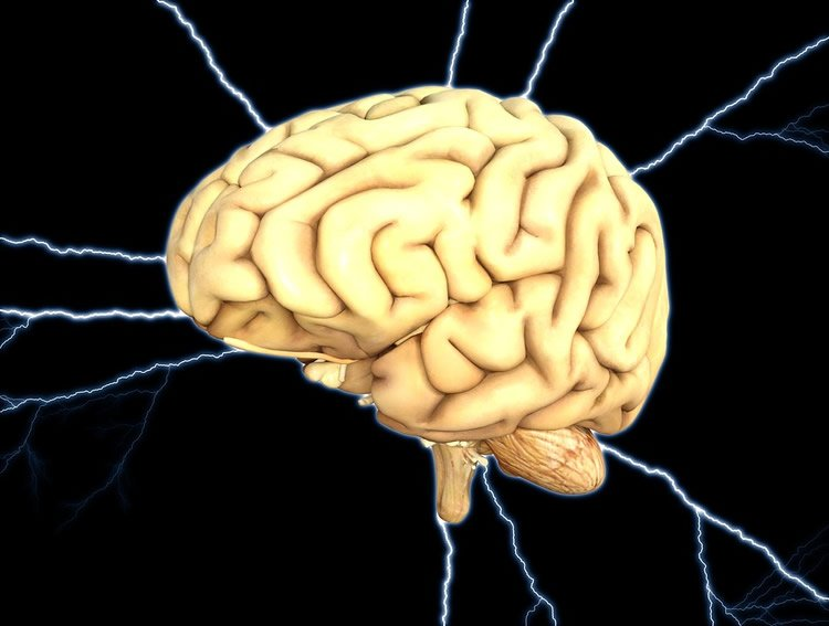 This shows a brain and lightening around it