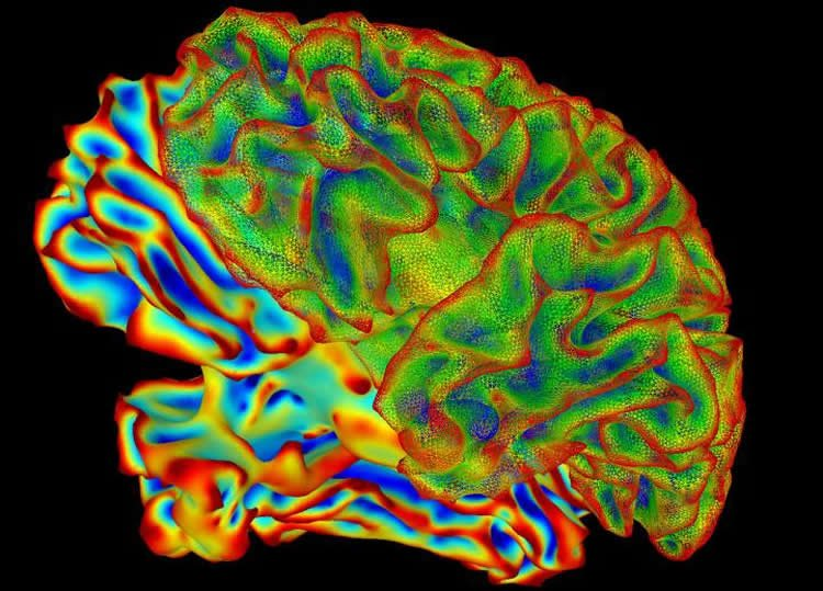 This is a colored brain
