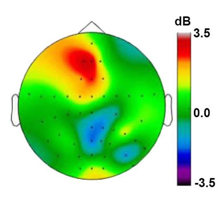 This EEG printout shows theta wave activity when DBS is applied