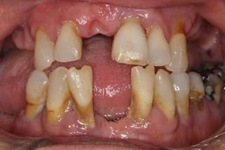 This shows the mouth of a person with gum disease. Many teeth are missing