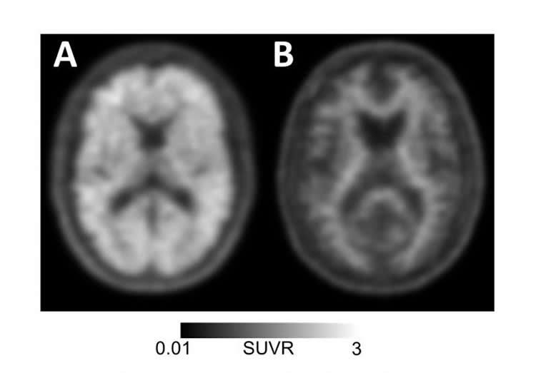 This shows pet brain imaging scans of a patient with Alzheimer's disease