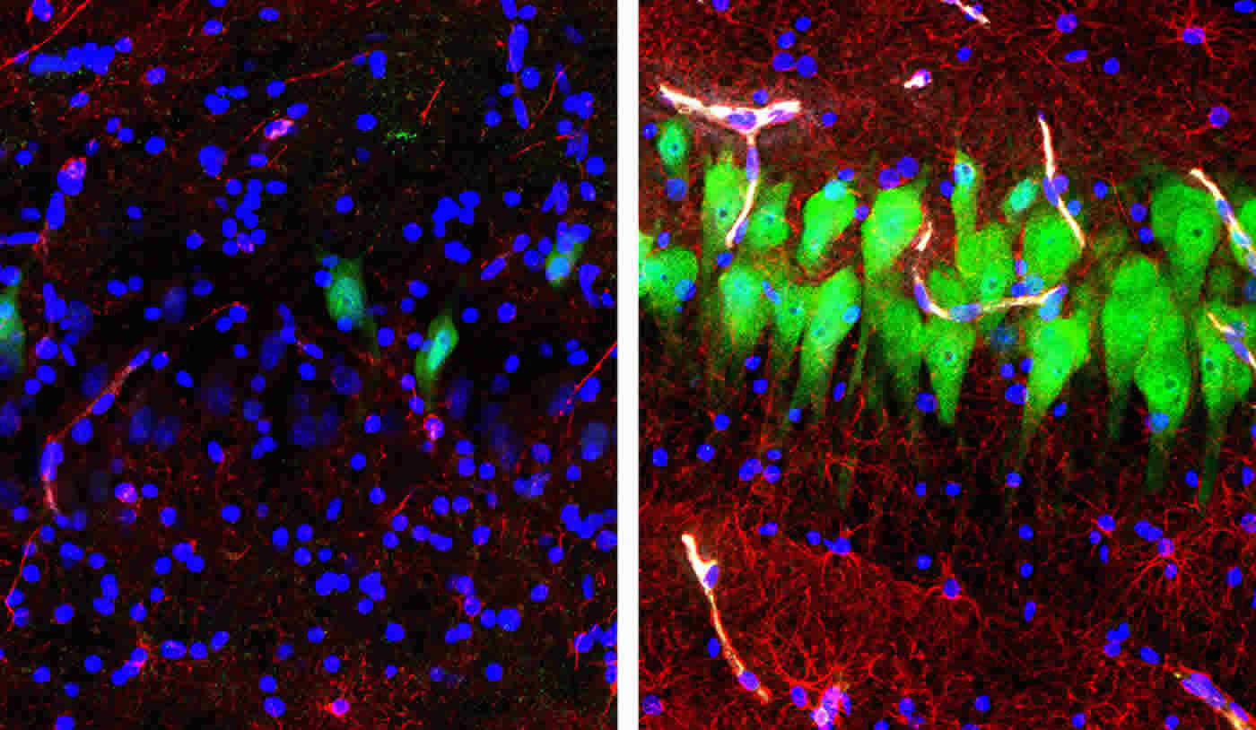 This shows neurons and astrocytes before and after reanimation