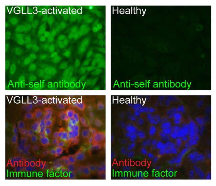 This shows VGLL3 expression in different skin samples