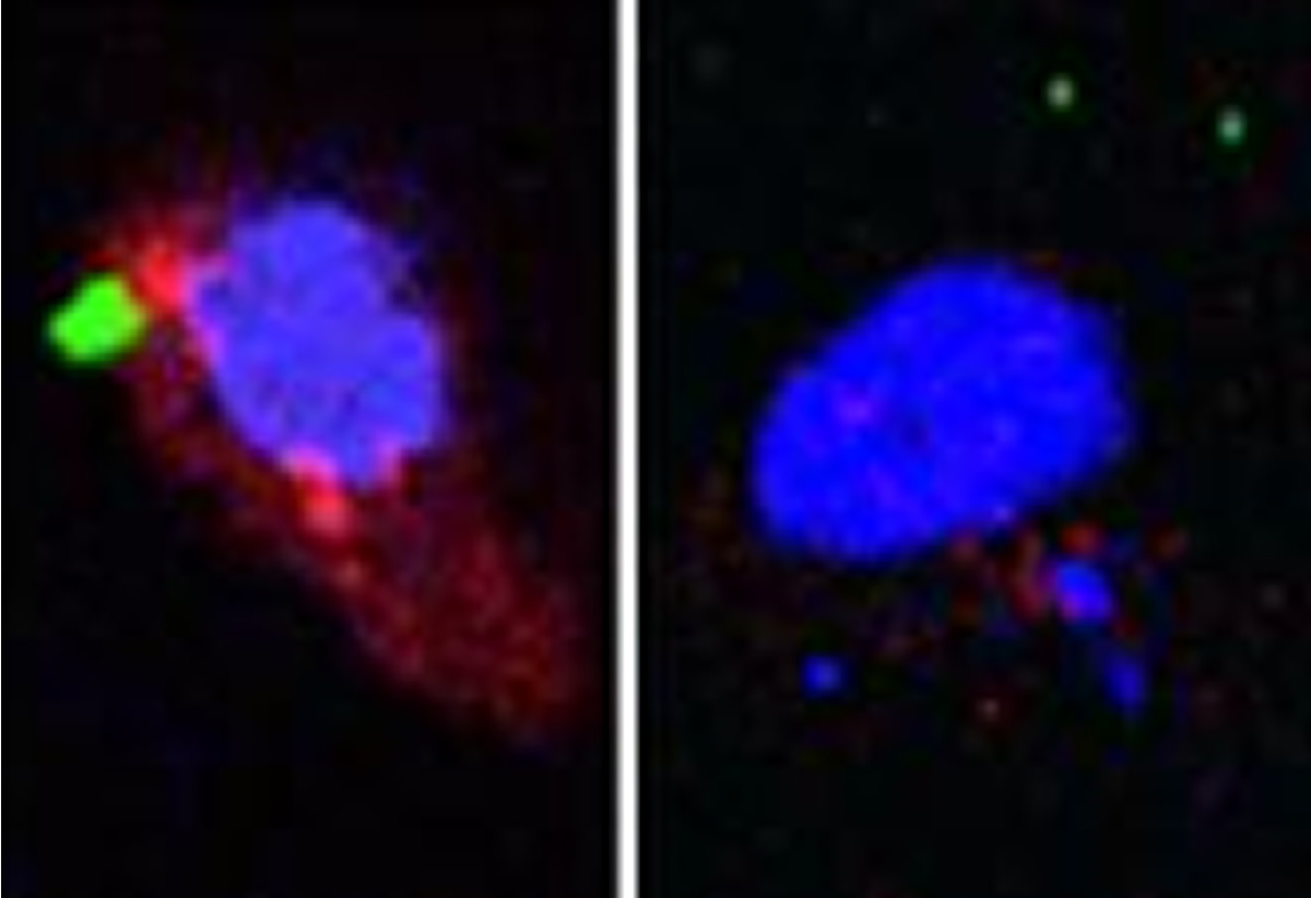 This shows immune cells