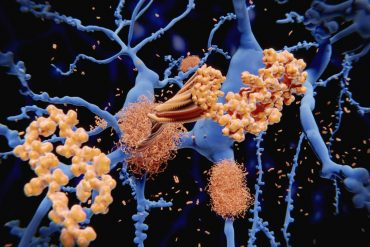 This shows the structure of amyloid beta