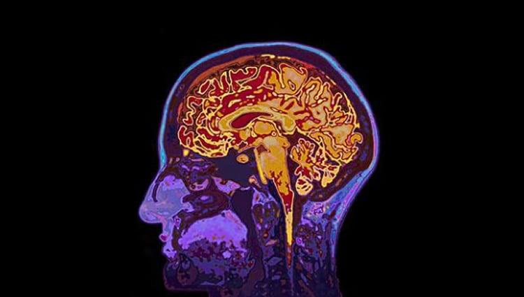 This shows a brain scan