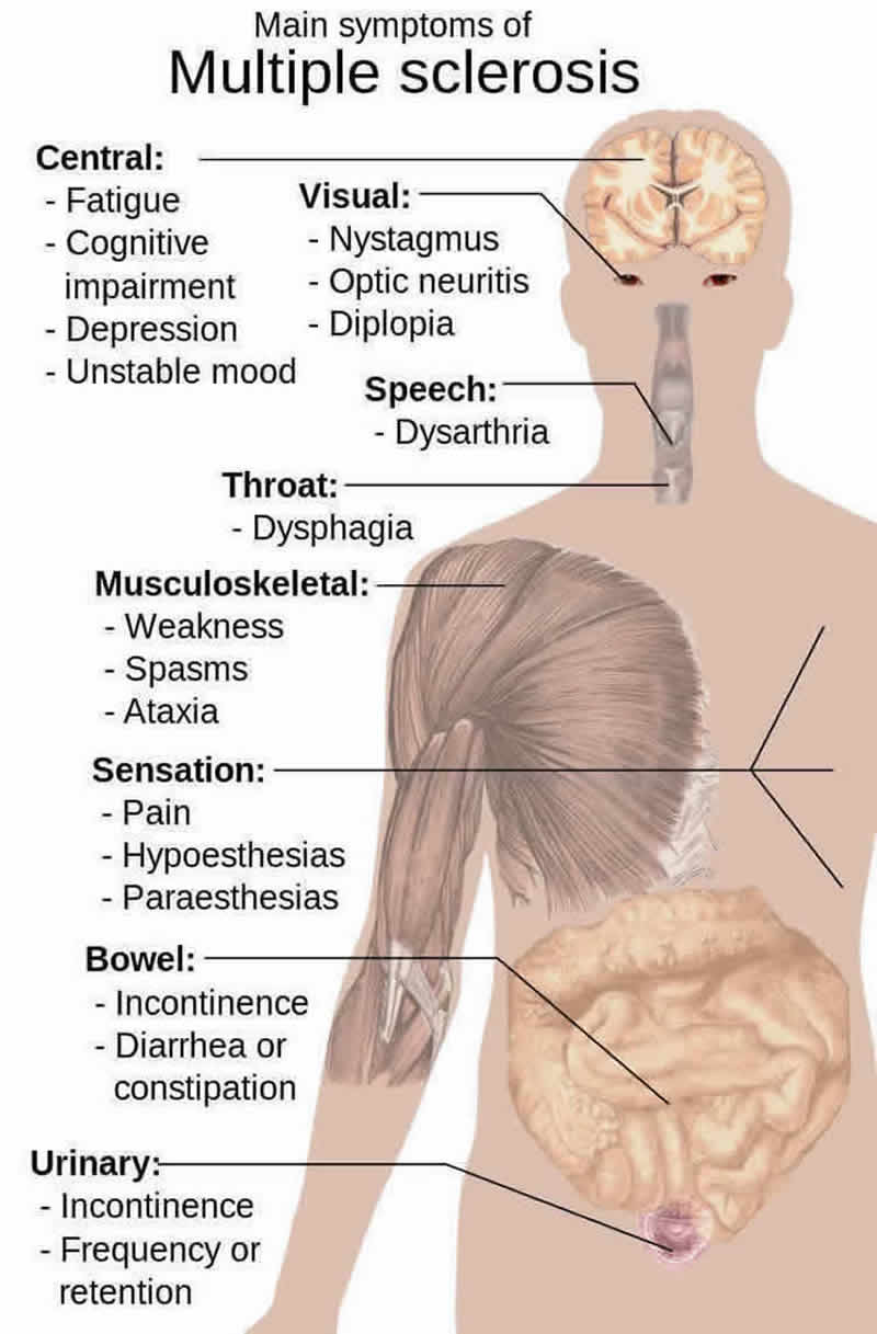This diagram shows how ms affects the body