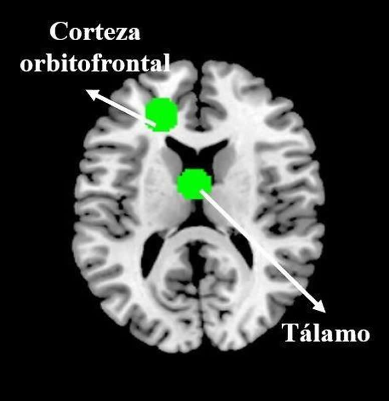 This brain scan highlights the thalamus and OFC