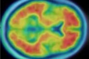This shows a PET scan of a person with Alzheimer's