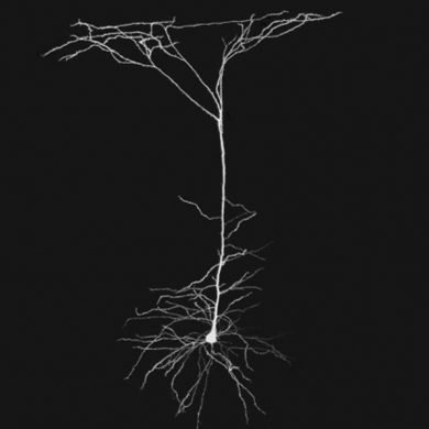 These are dendrites
