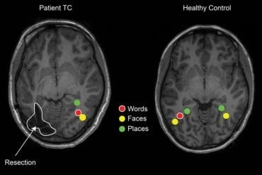 this shows the fMRI brain scan
