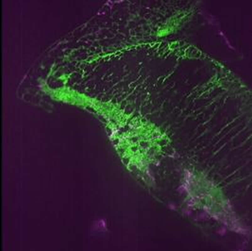 This shows neurons and astrocytes