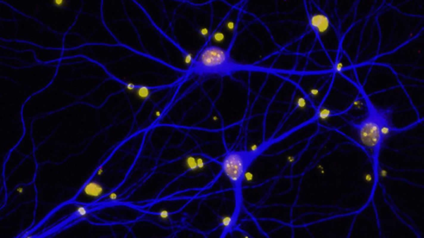 This shows neurons