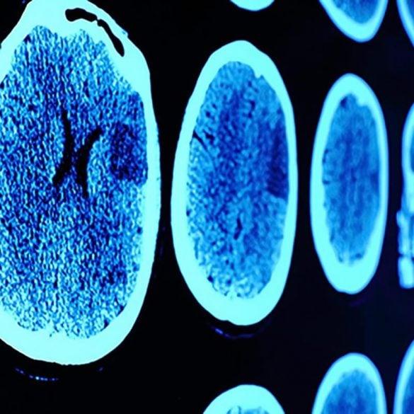 This show glioblastoma brain scans