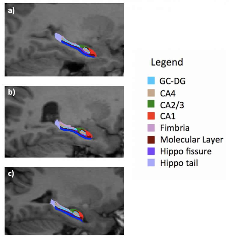 This shows hippocampal brian scans