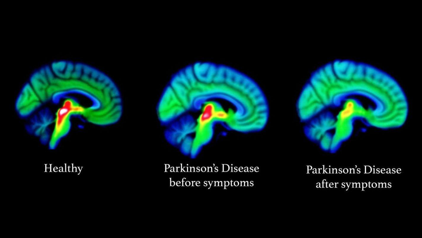 This shows blue parkinson's brains