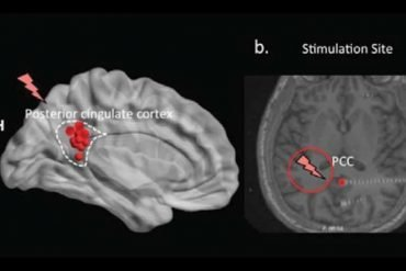This shows the brain scans from the study