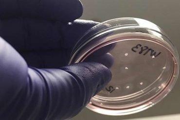 This shows a mini-brain in a petri dish