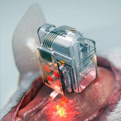 This shows the implant