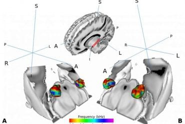 This shows brain scans