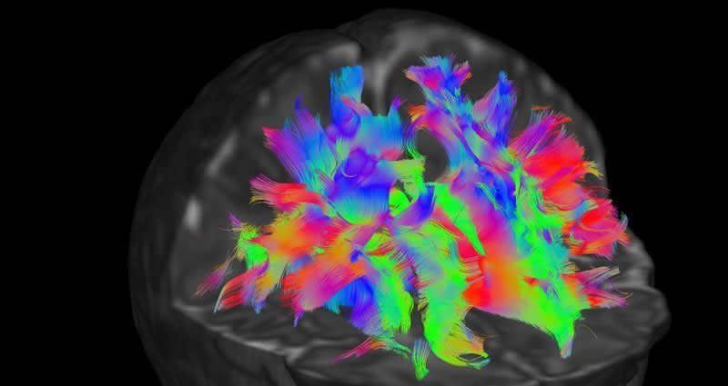This is one of the baby brain scans from the collection