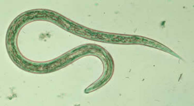 This shows a hookworm